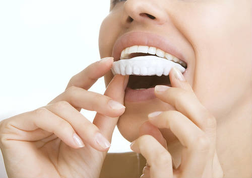 Teeth Whitening in Oakley, CA